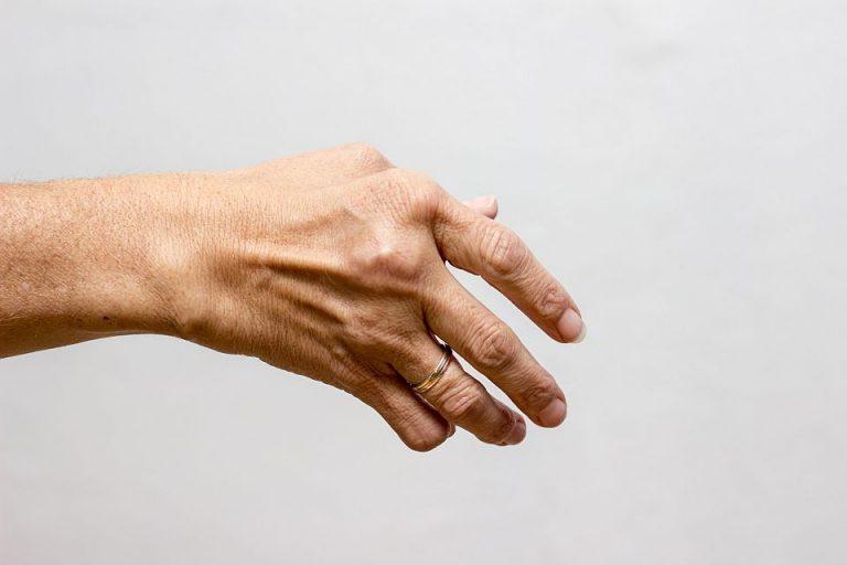 Choroby tkanki łącznej Białystok