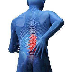 ból kręgosłupa schemat ortopedy